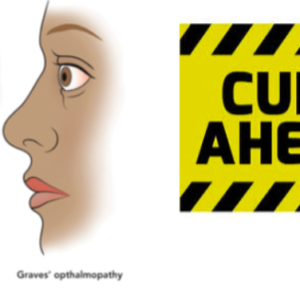 Alternative Treatment of Graves Disease   Basedow