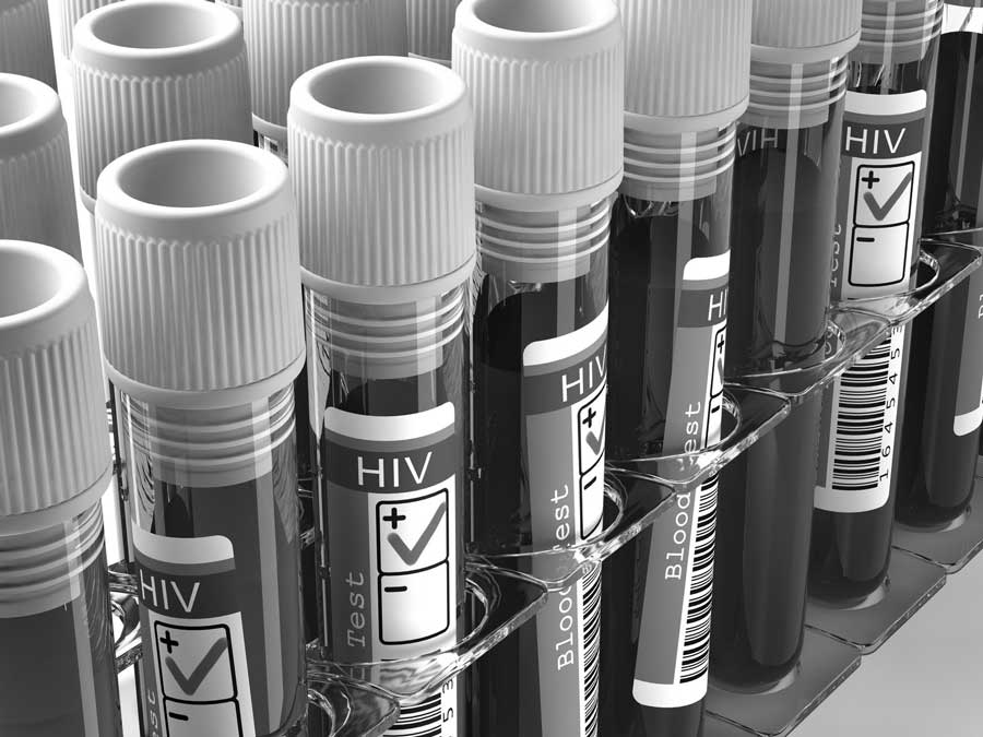 HIV-immune-deficiency-aids-homeopathy900